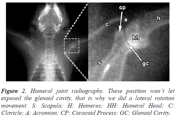 biomedres-Humeral-joint-radiography