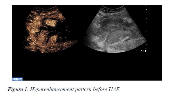 biomedres-Hyperenhancement-pattern