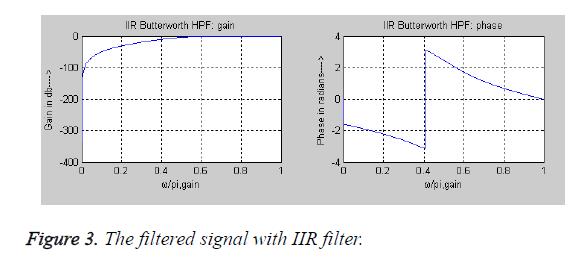 biomedres-IIR-filter