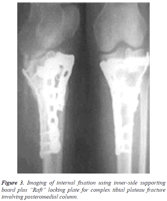 biomedres-Imaging-internal-fixation