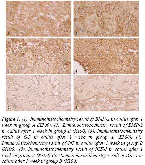 biomedres-Immunohistochemistry-result-IGF
