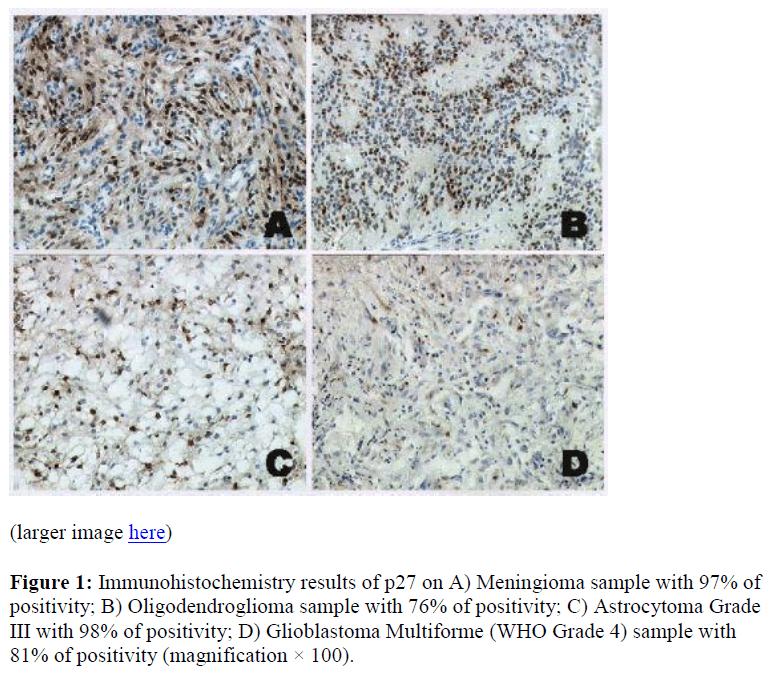 biomedres-Immunohistochemistry-results-Meningioma-positivity