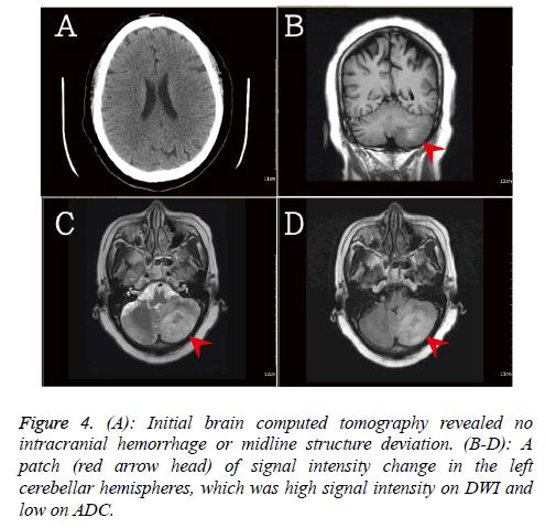 biomedres-Initial-brain