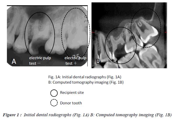 biomedres-Initial-dental-radiographs