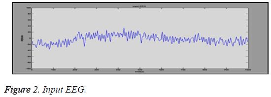 biomedres-Input-EEG