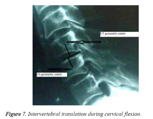biomedres-Intervertebral-translation