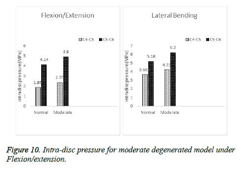 biomedres-Intra-disc-pressure