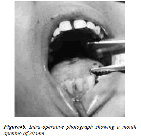 biomedres-Intra-operative-photograph-showing-mouth-opening