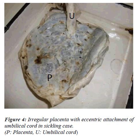 biomedres-Irregular-placenta-eccentric