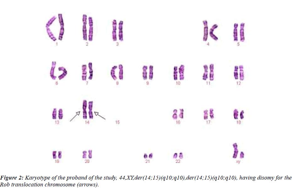 biomedres-Karyotype-proband-study