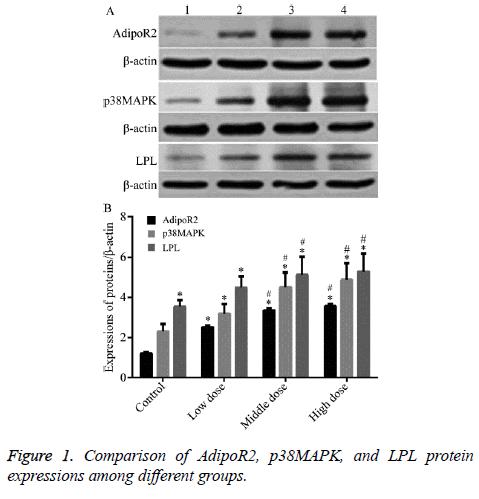 biomedres-LPL-protein