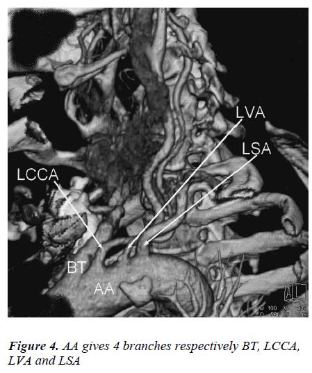 biomedres-LVA-LSA