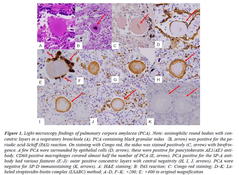 biomedres-Light-microscopy-pulmonary-corpora
