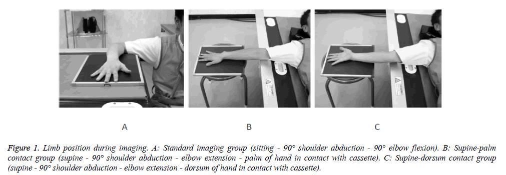 biomedres-Limb-position