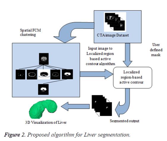 biomedres-Liver-segmentation