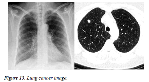 biomedres-Lung-cancer