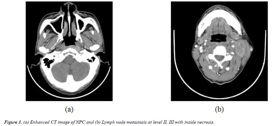 biomedres-Lymph-node