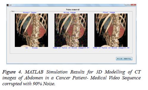 biomedres-MATLAB-Simulation