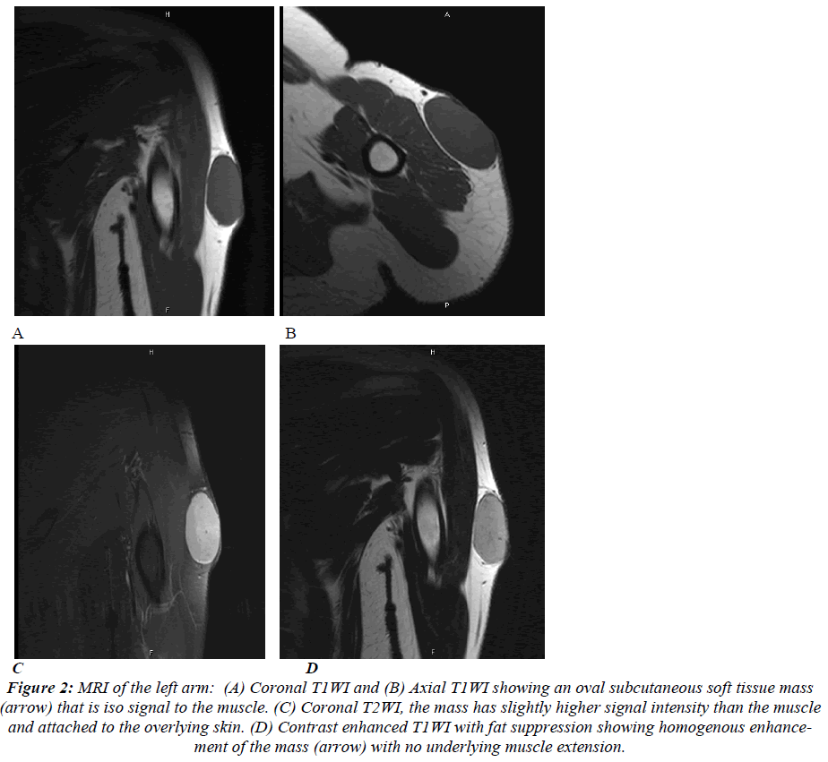 biomedres-MRI-left-arm