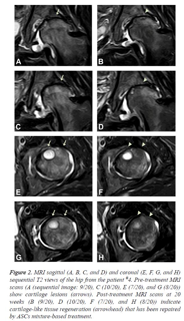 biomedres-MRI-sagittal