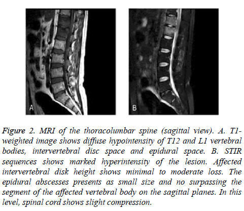 biomedres-MRI-thoracolumbar