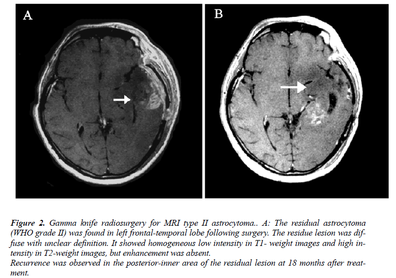 biomedres-MRI-type-II-astrocytoma