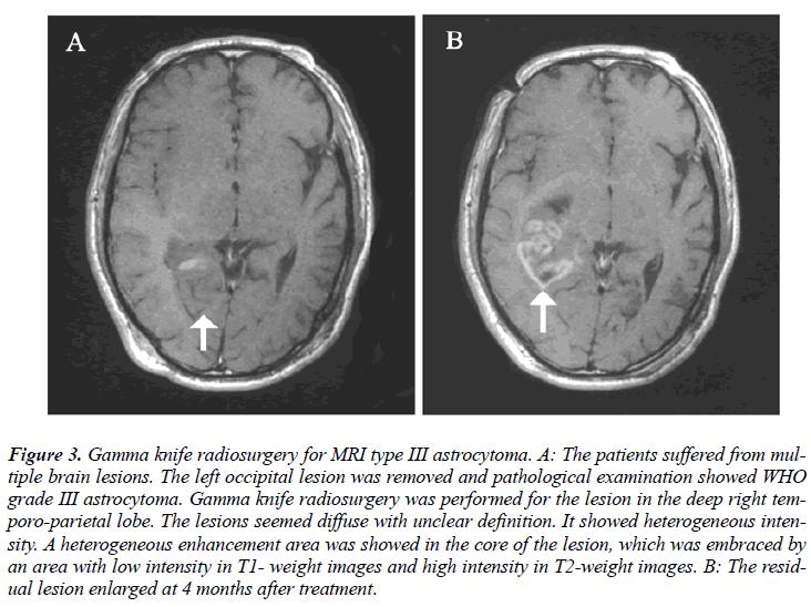 biomedres-MRI-type-III-astrocytoma