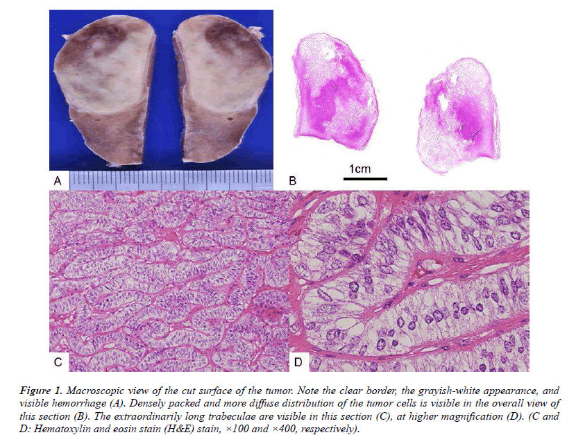 biomedres-Macroscopic-surface-tumor