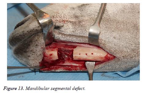 biomedres-Mandibular-segmental