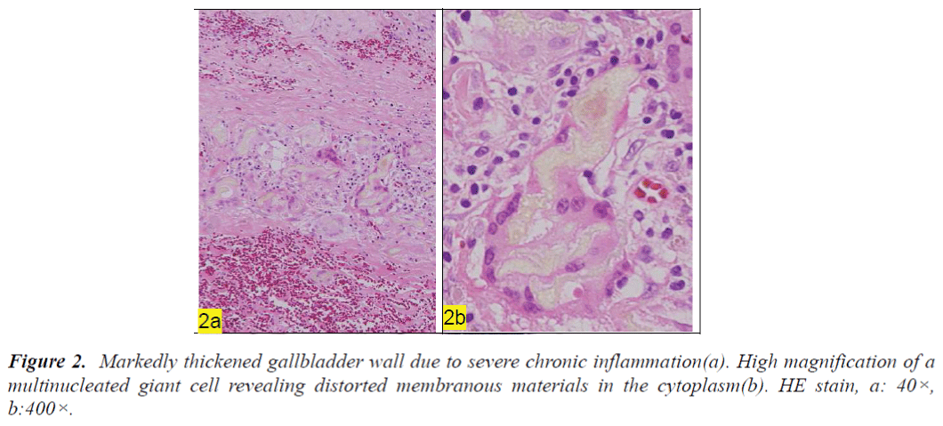 biomedres-Markedly-thickened-gallbladder