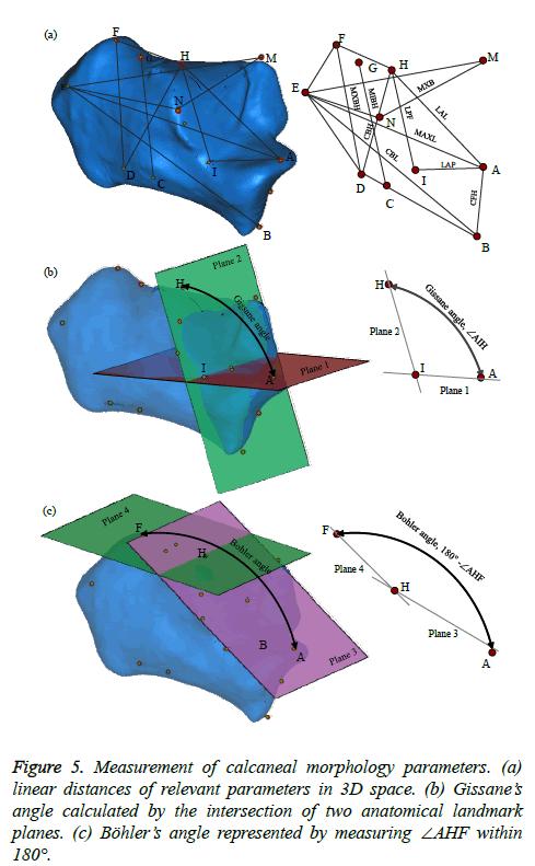 biomedres-Measurement-calcaneal