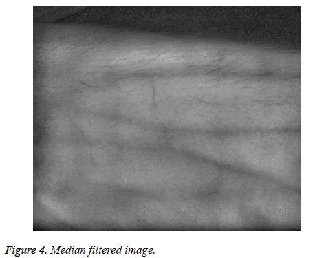 biomedres-Median-filtered-image