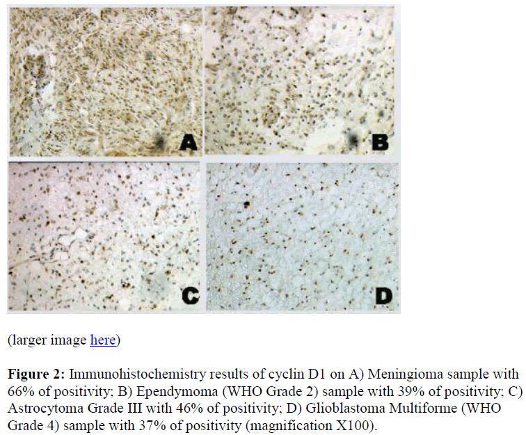 biomedres-Meningioma-Ependymoma-Glioblastoma-Multiforme