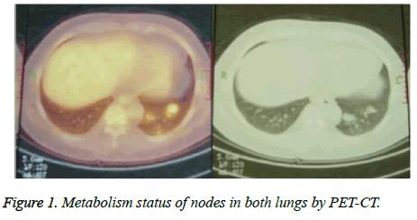 biomedres-Metabolism-status