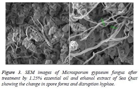 biomedres-Microsporum-gypseum