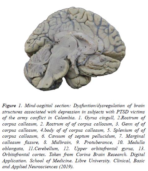 biomedres-Mind-sagittal