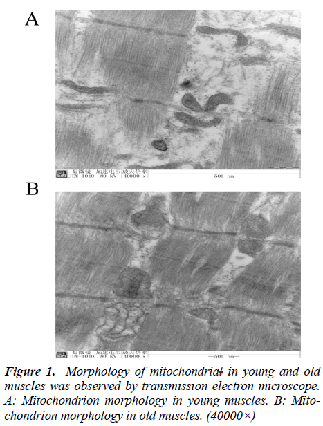 biomedres-Morphology-mitochondrial