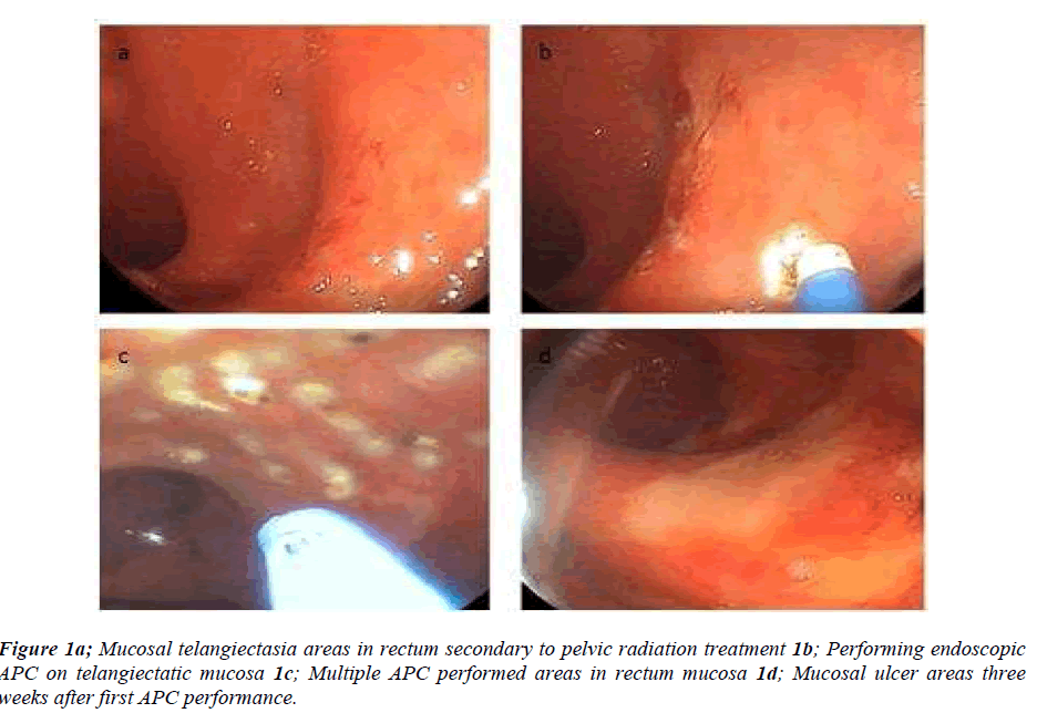 biomedres-Mucosal-telangiectasia-areas