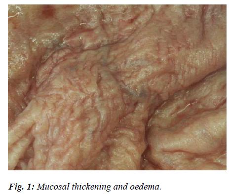 biomedres-Mucosal-thickening