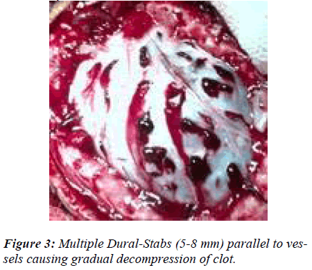 biomedres-Multiple-Dural-Stabs