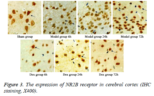 biomedres-NR2B-receptor