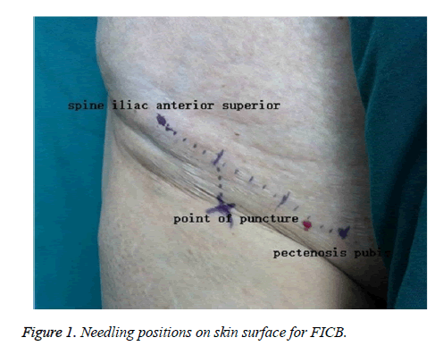 biomedres-Needling-positions