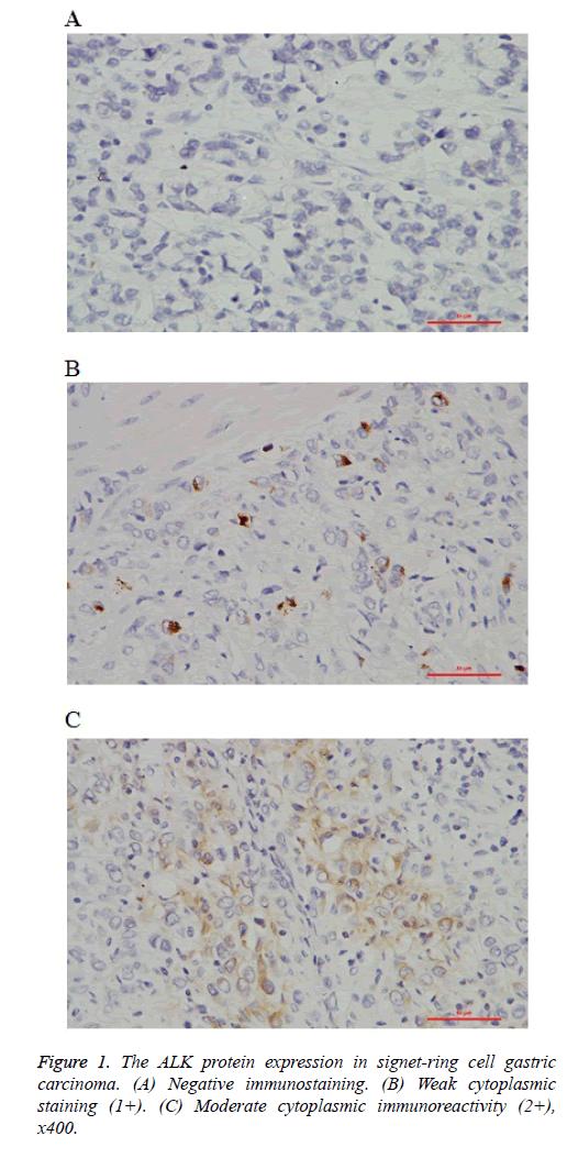 biomedres-Negative-immunostaining