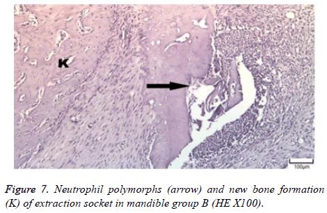 biomedres-Neutrophil-polymorphs