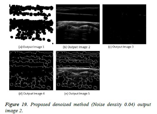 biomedres-Noise-density