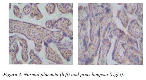 biomedres-Normal-placenta