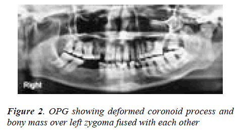 biomedres-OPG-showing-deformed-coronoid-process