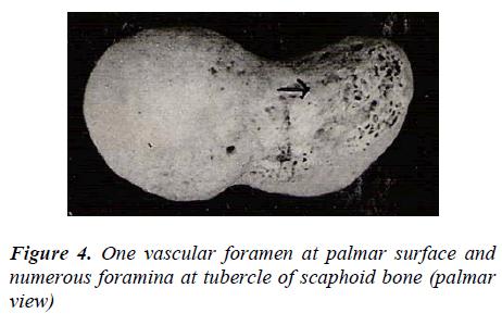 biomedres-One-vascular-foramen-palmar-surface