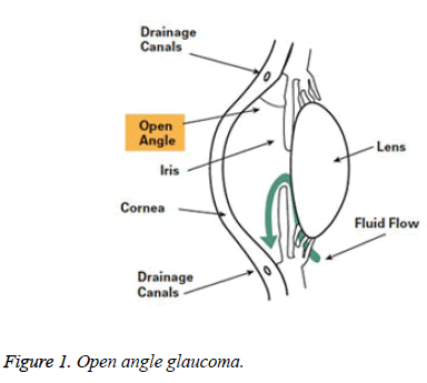 biomedres-Open-angle