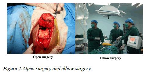 biomedres-Open-surgery